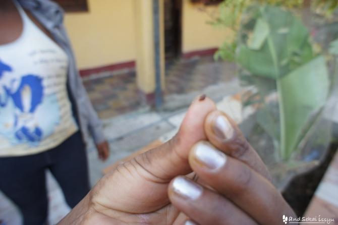 エチオピアで南京虫
